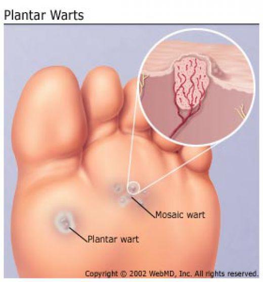 wart diagram from nails to nonsense Plantar Wart Tissue Heals Diagram Of Warts #15